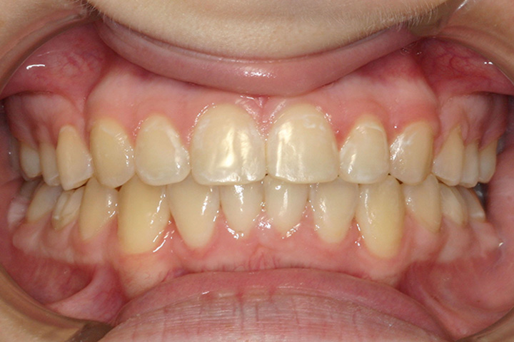 Patient 1 – Post ortho (resized)