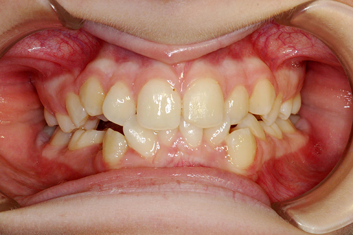Patient 1 – Pre ortho (resized)